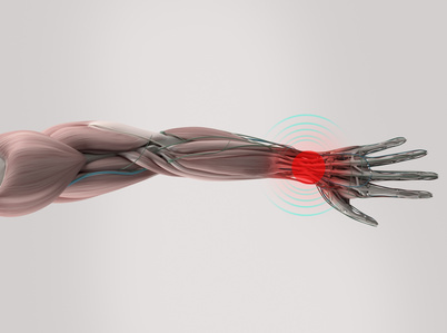 Thread Carpal Tunnel Release - Dr. Daniel Malone in Madison WI