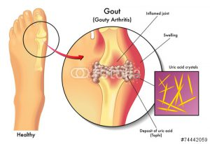gout examples - Dr. Daniel G. Malone in Madison WI